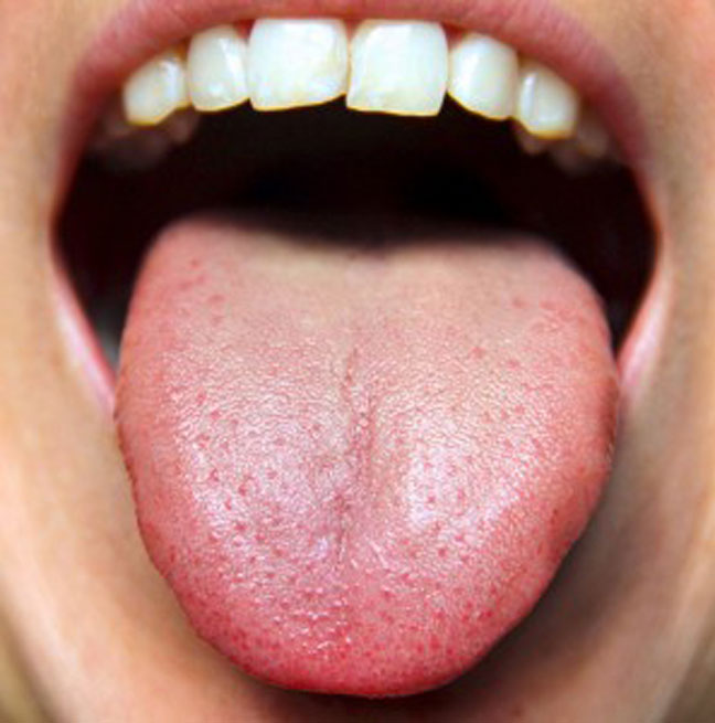 Tongue Reflect Your Health